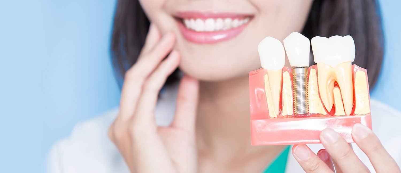Dental Implants Treatment in Hyderabad